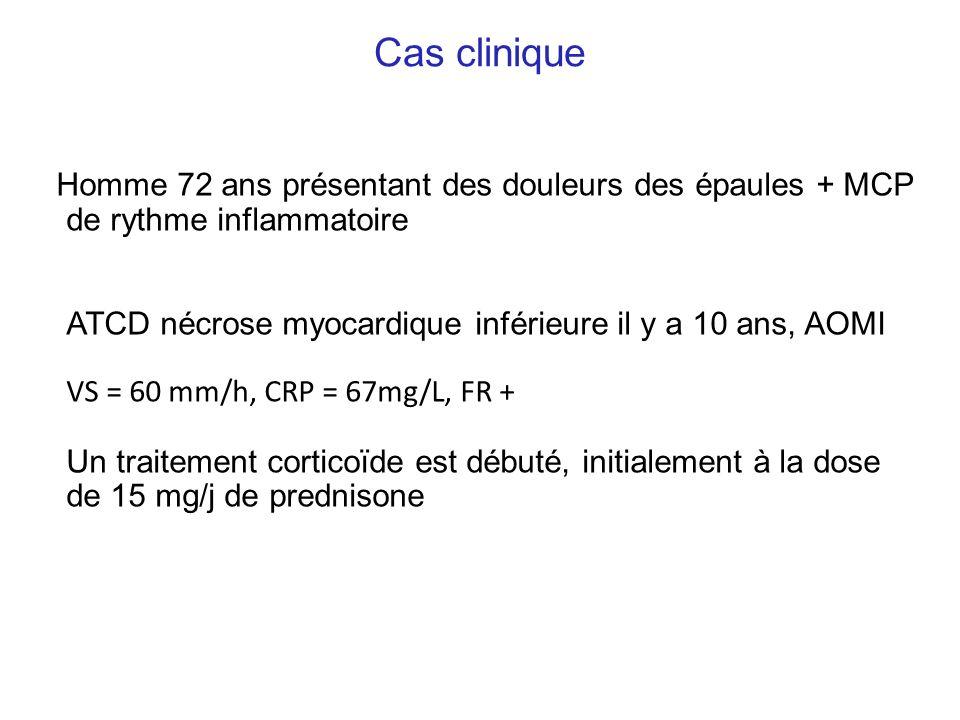 Cas cliniqueHomme 72 ans présentant des douleurs des épaules + MCP de rythme inflammatoire.
