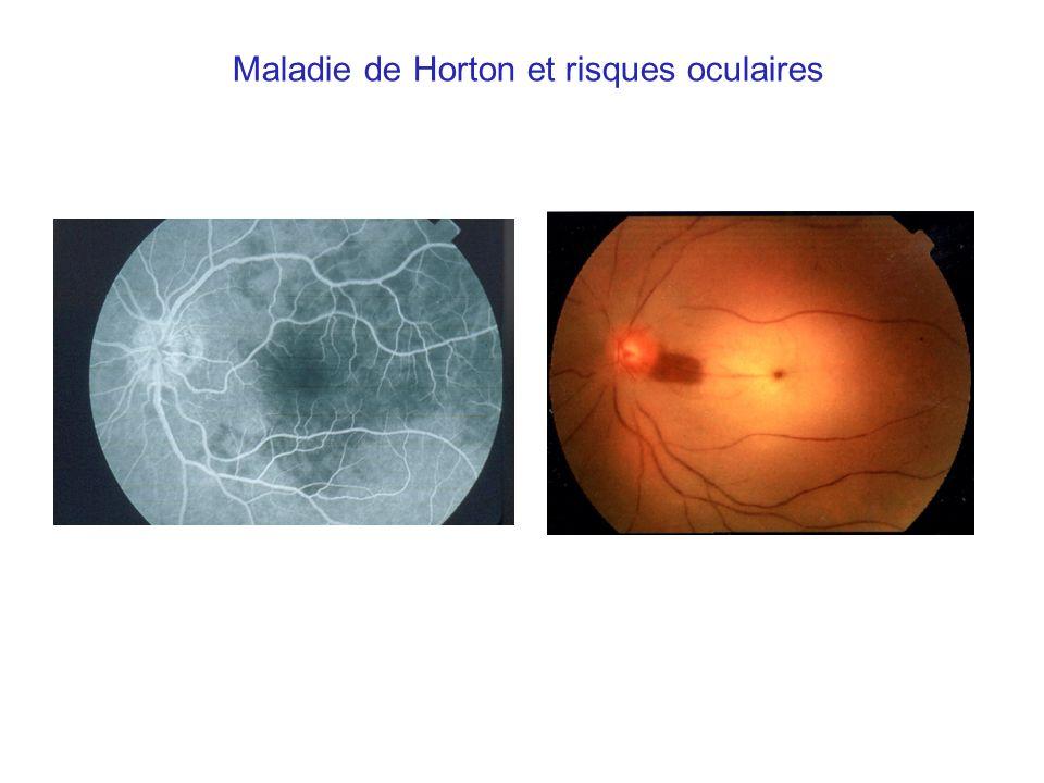 Maladie de Horton et risques oculaires