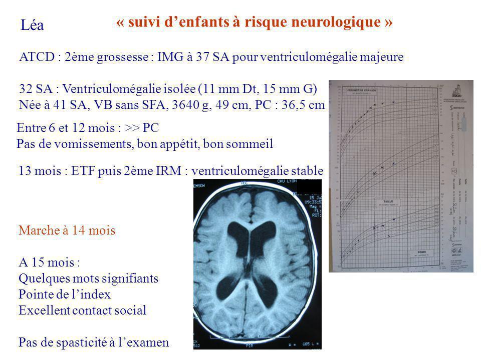 « suivi d'enfants à risque neurologique » Léa
