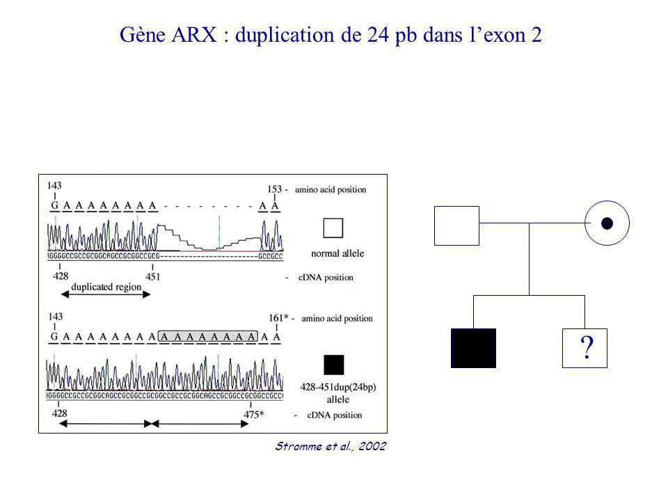 Gène ARX : duplication de 24 pb dans l'exon 2