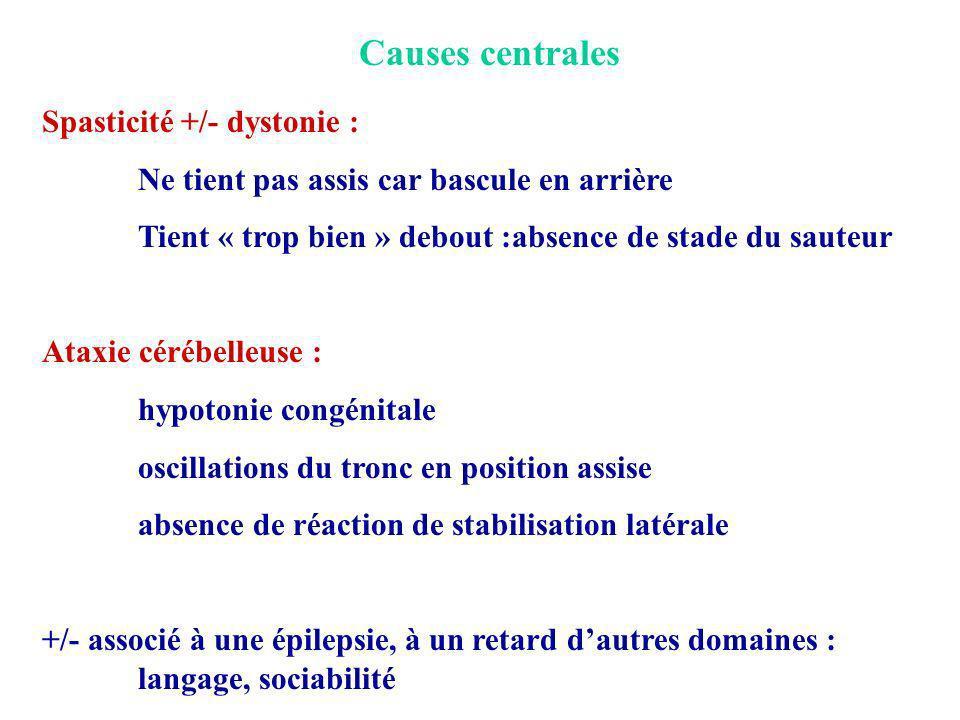 Causes centrales Spasticité +/- dystonie :