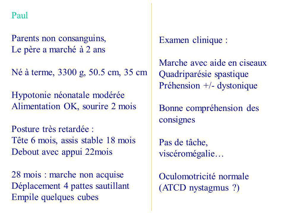 Examen clinique : Marche avec aide en ciseaux. Quadriparésie spastique. Préhension +/- dystonique.