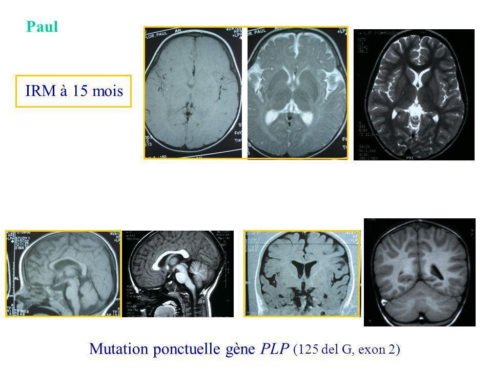 Paul IRM à 15 mois Mutation ponctuelle gène PLP (125 del G, exon 2)