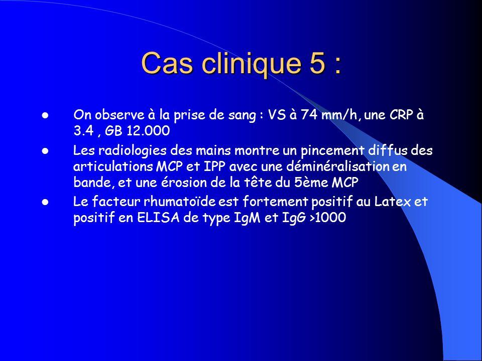 Cas clinique 5 :On observe à la prise de sang : VS à 74 mm/h, une CRP à 3.4 , GB 12.000.