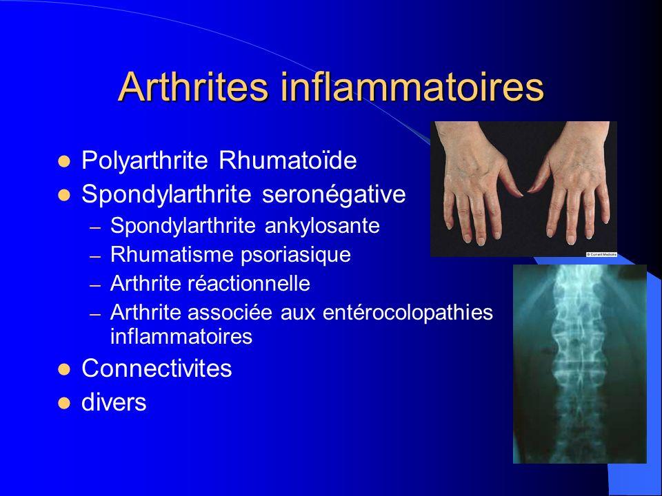 Arthrites inflammatoires