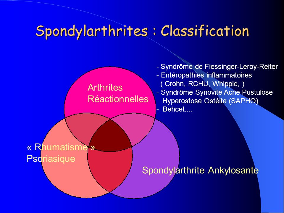 Spondylarthrites : Classification