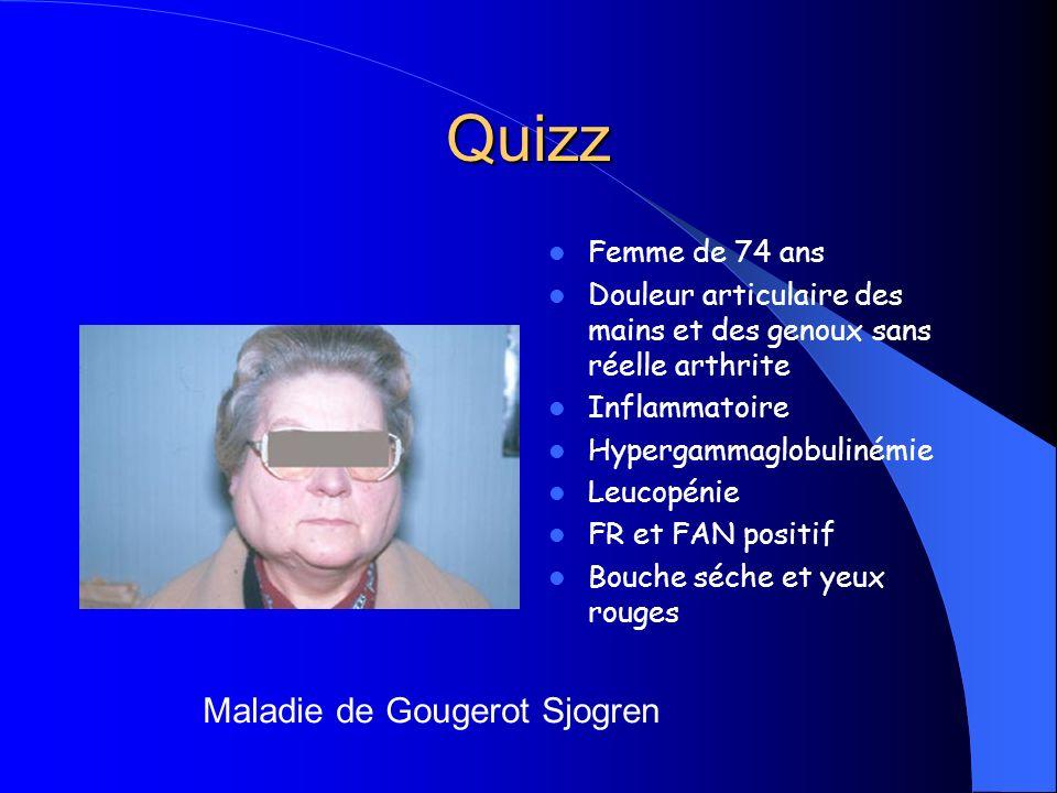 Quizz Maladie de Gougerot Sjogren Femme de 74 ans