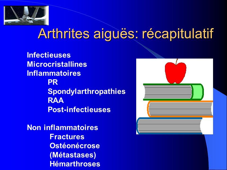 Arthrites aiguës: récapitulatif