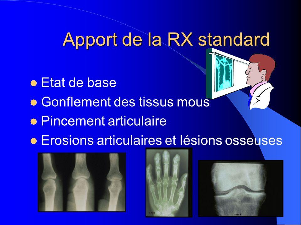 Apport de la RX standard