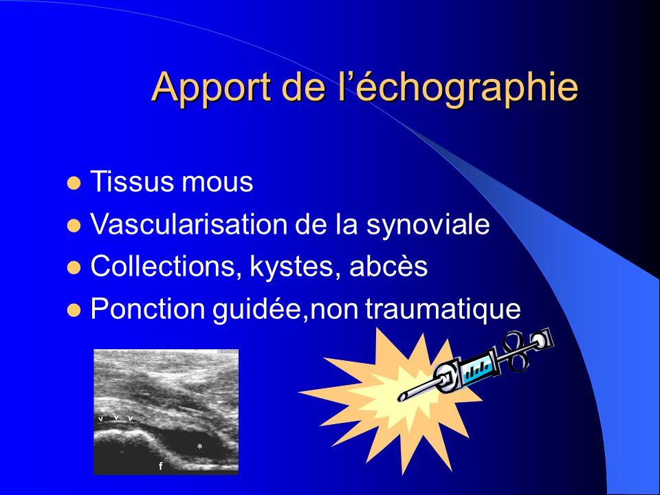 Apport de l'échographie