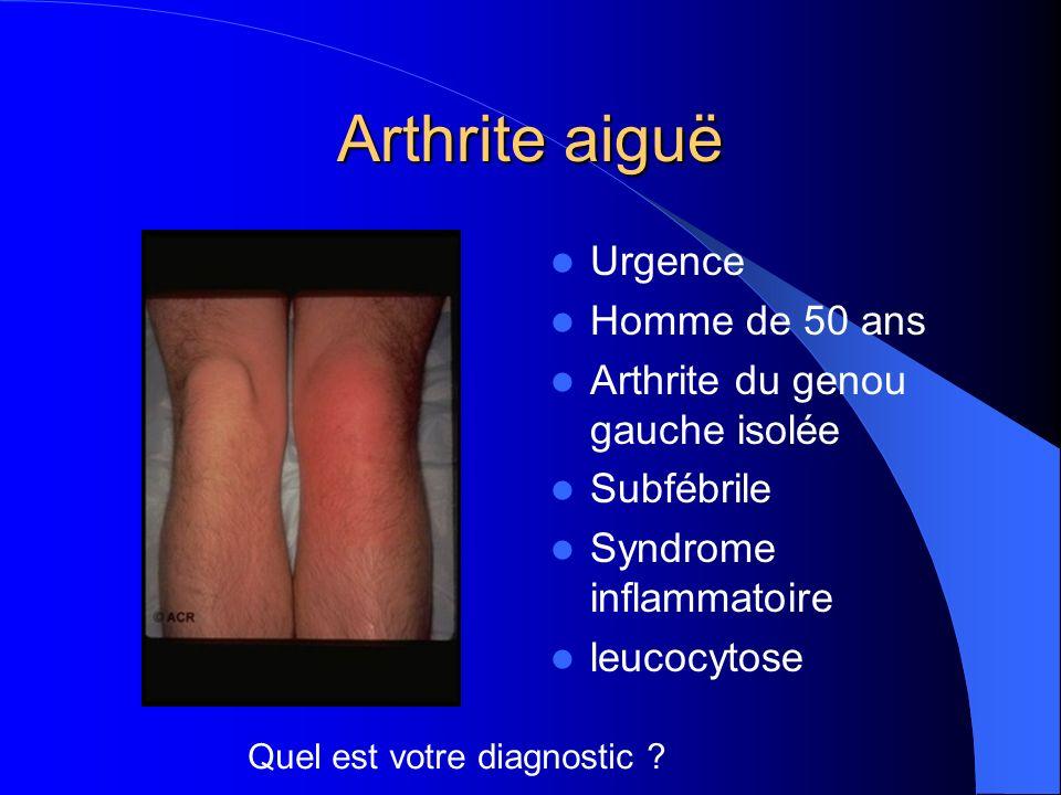 Arthrite aiguë Urgence Homme de 50 ans Arthrite du genou gauche isolée