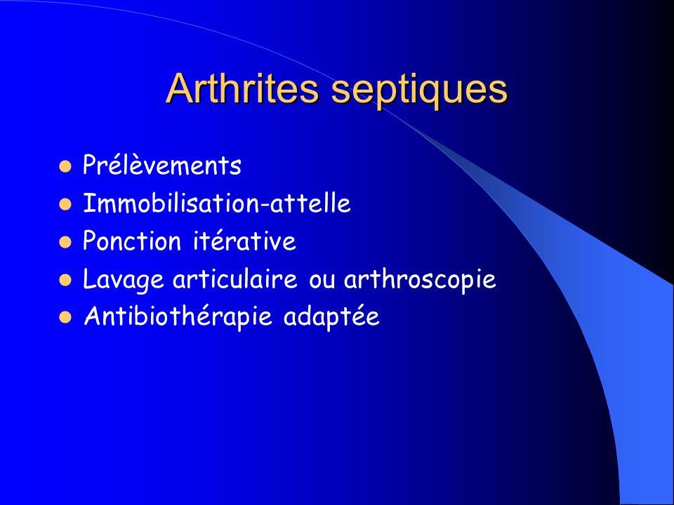 Arthrites septiques Prélèvements Immobilisation-attelle