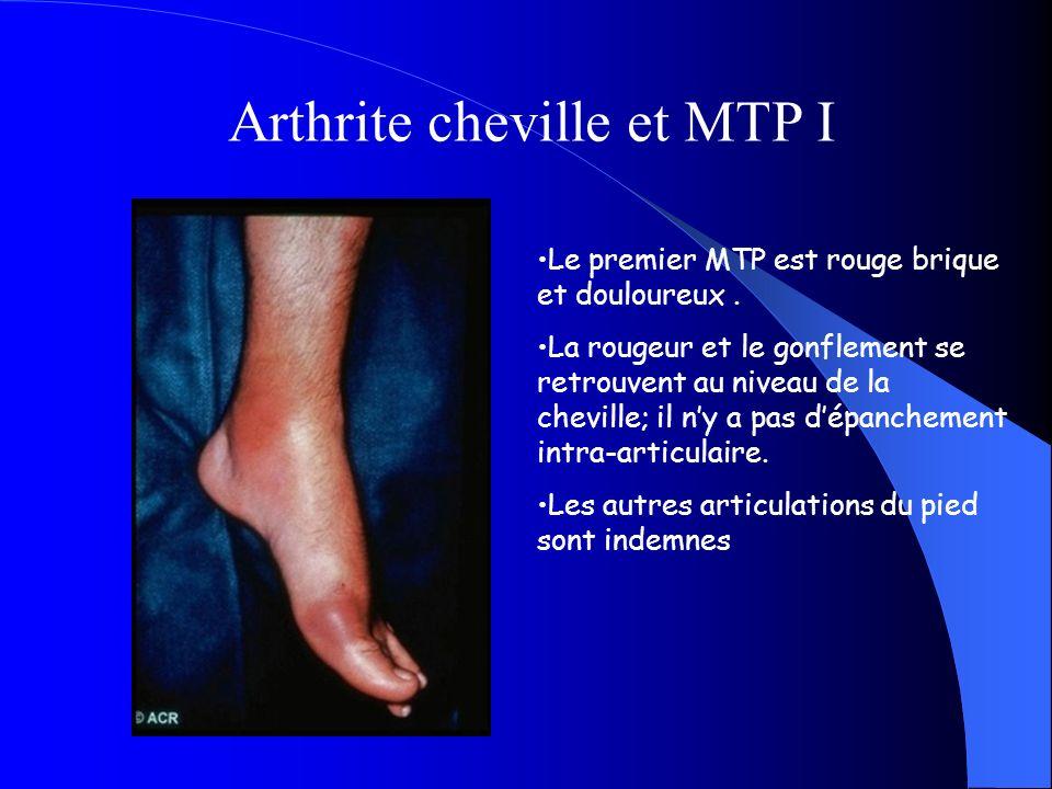Arthrite cheville et MTP I