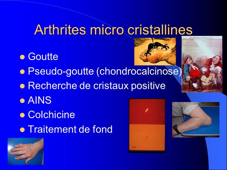 Arthrites micro cristallines