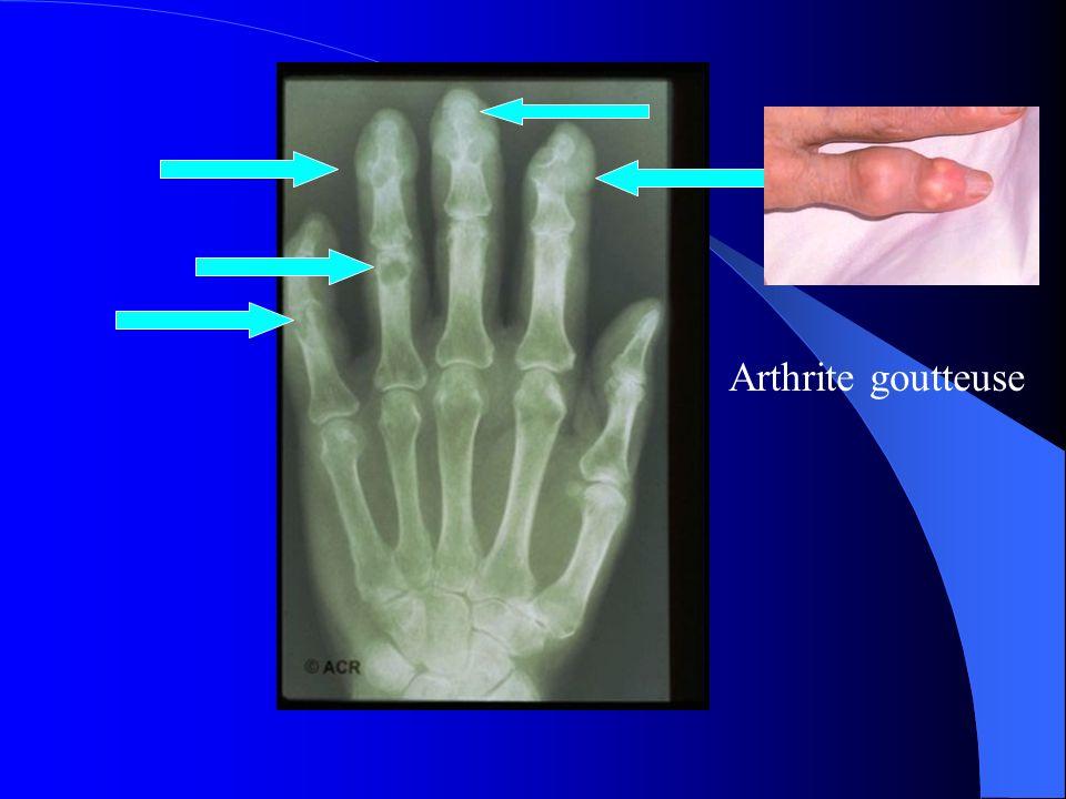Arthrite goutteuse