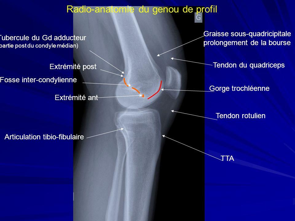 Radio-anatomie du genou de profil