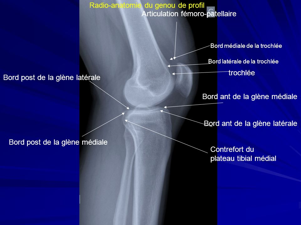 Radio-anatomie du genou de profil Articulation fémoro-patellaire