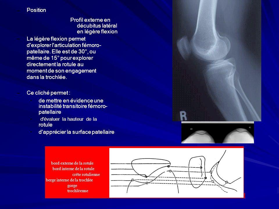 La légère flexion permet d explorer l articulation fémoro-
