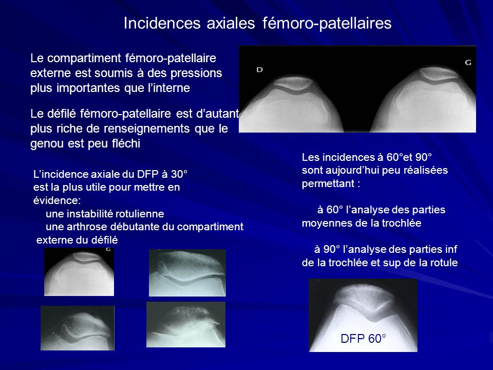 Incidences axiales fémoro-patellaires