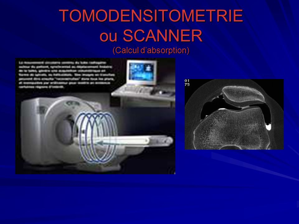 TOMODENSITOMETRIE ou SCANNER (Calcul d'absorption)