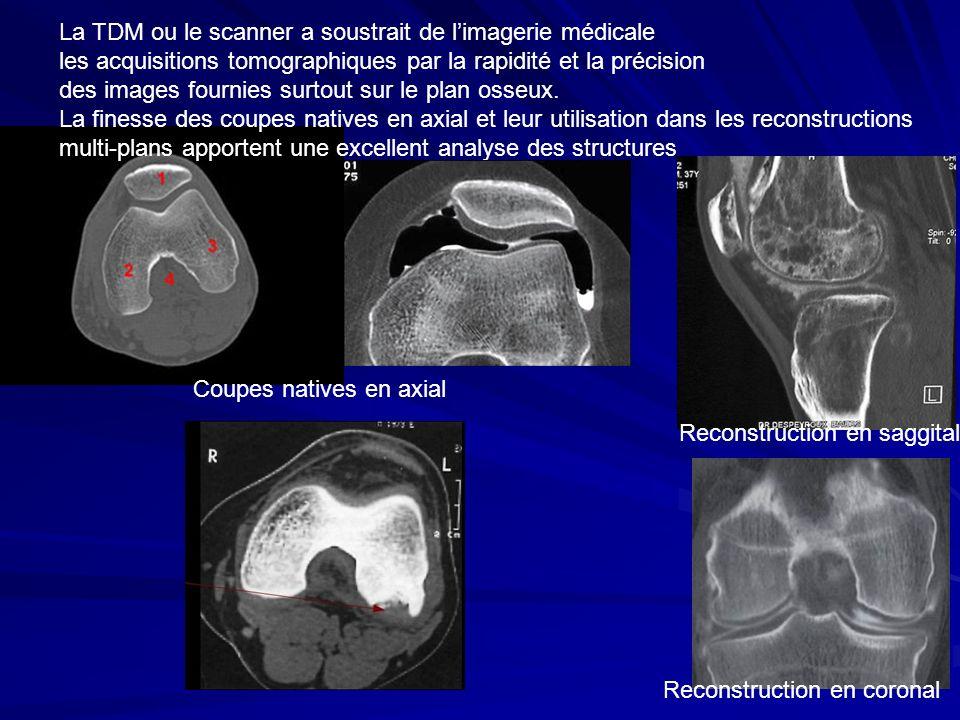 La TDM ou le scanner a soustrait de l'imagerie médicale