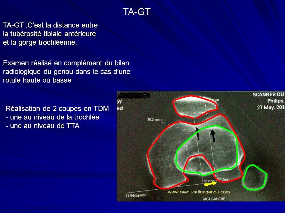 TA-GT TA-GT :C est la distance entre la tubérosité tibiale antérieure