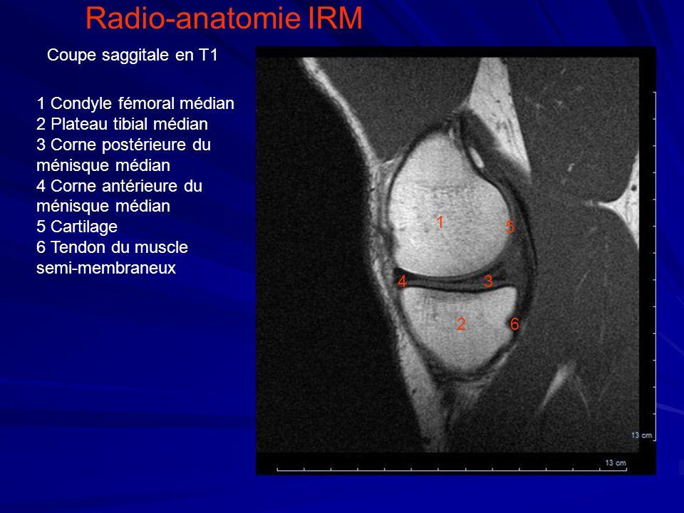 Radio-anatomie IRM Coupe saggitale en T1 1 Condyle fémoral médian
