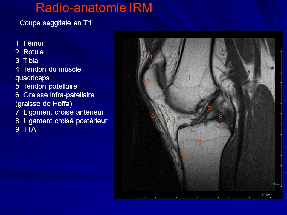 Radio-anatomie IRM Coupe saggitale en T1 1 Fémur 2 Rotule 3 Tibia