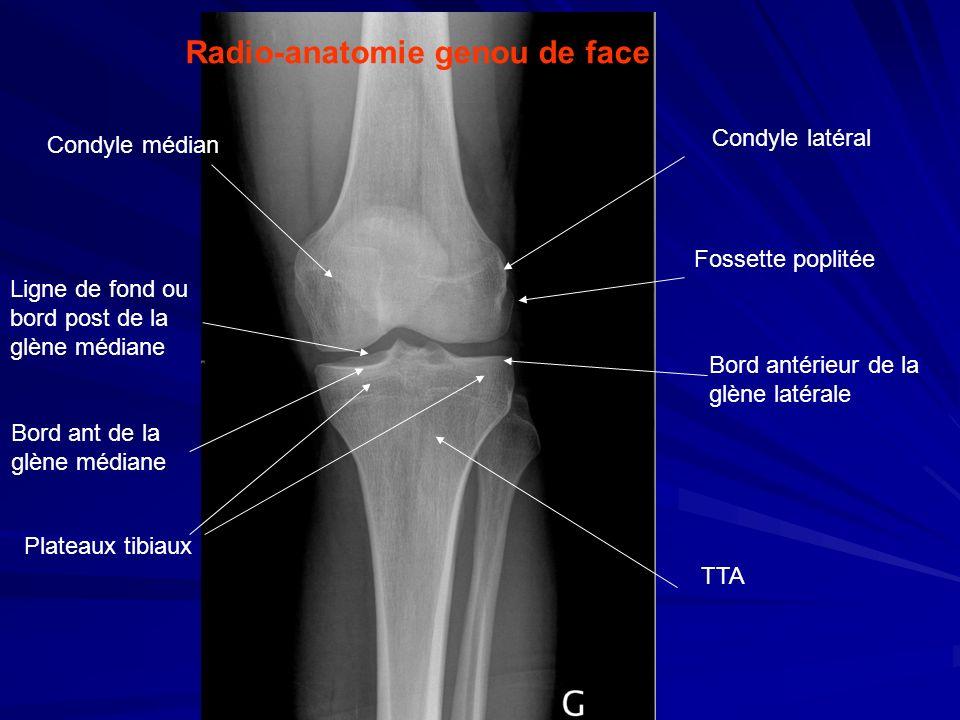 Radio-anatomie genou de face