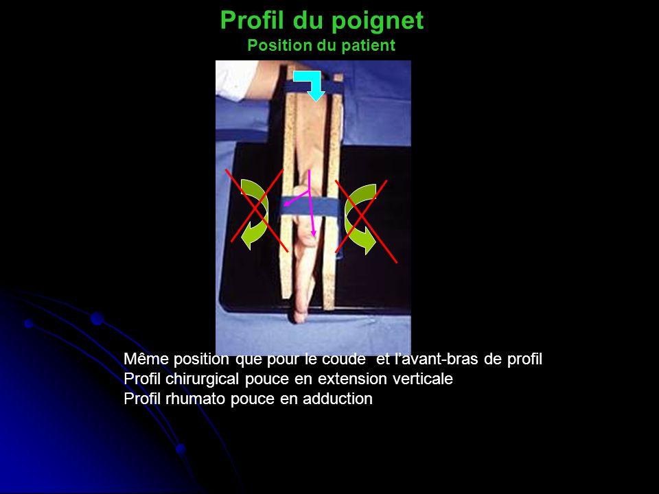 Profil du poignet Position du patient