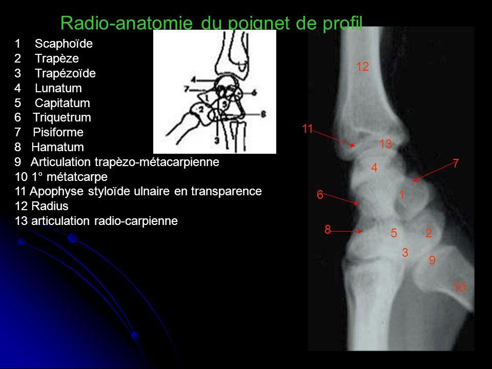 Radio-anatomie du poignet de profil