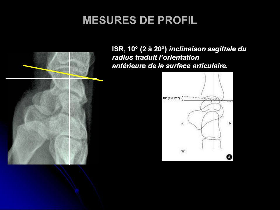 MESURES DE PROFIL ISR, 10° (2 à 20°) inclinaison sagittale du radius traduit l'orientation.