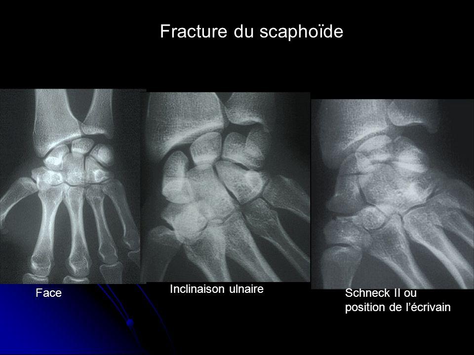 Fracture du scaphoïde Inclinaison ulnaire Face Schneck II ou