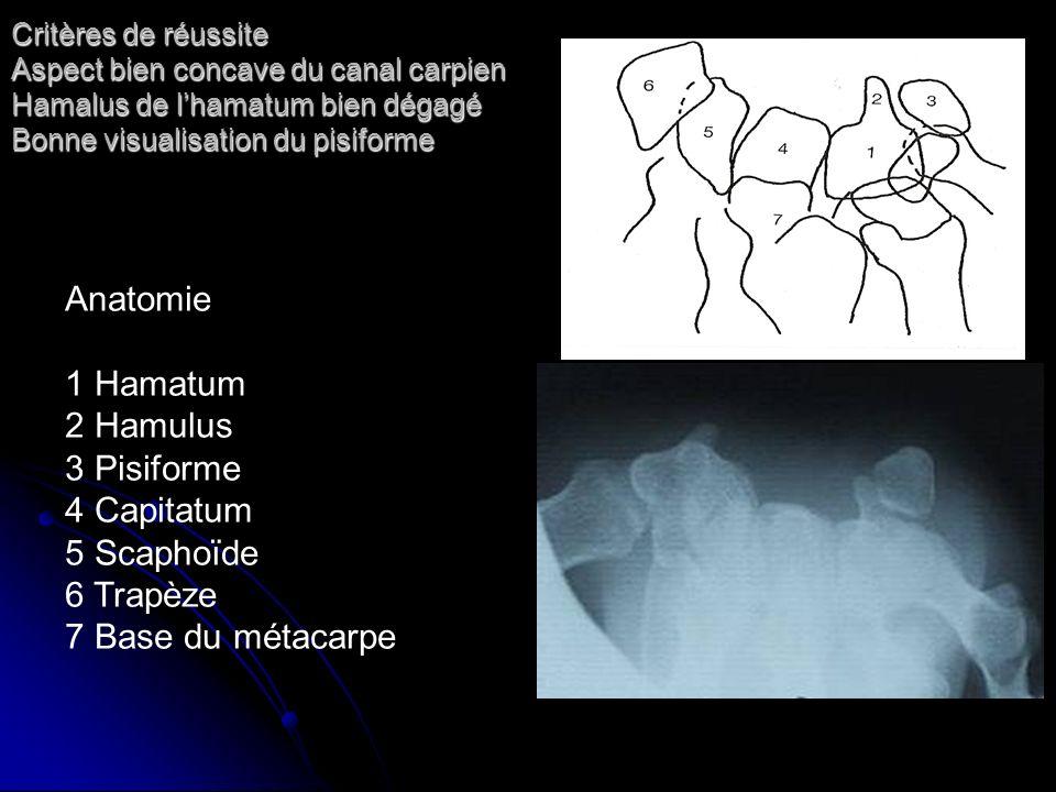Anatomie 1 Hamatum 2 Hamulus 3 Pisiforme 4 Capitatum 5 Scaphoïde