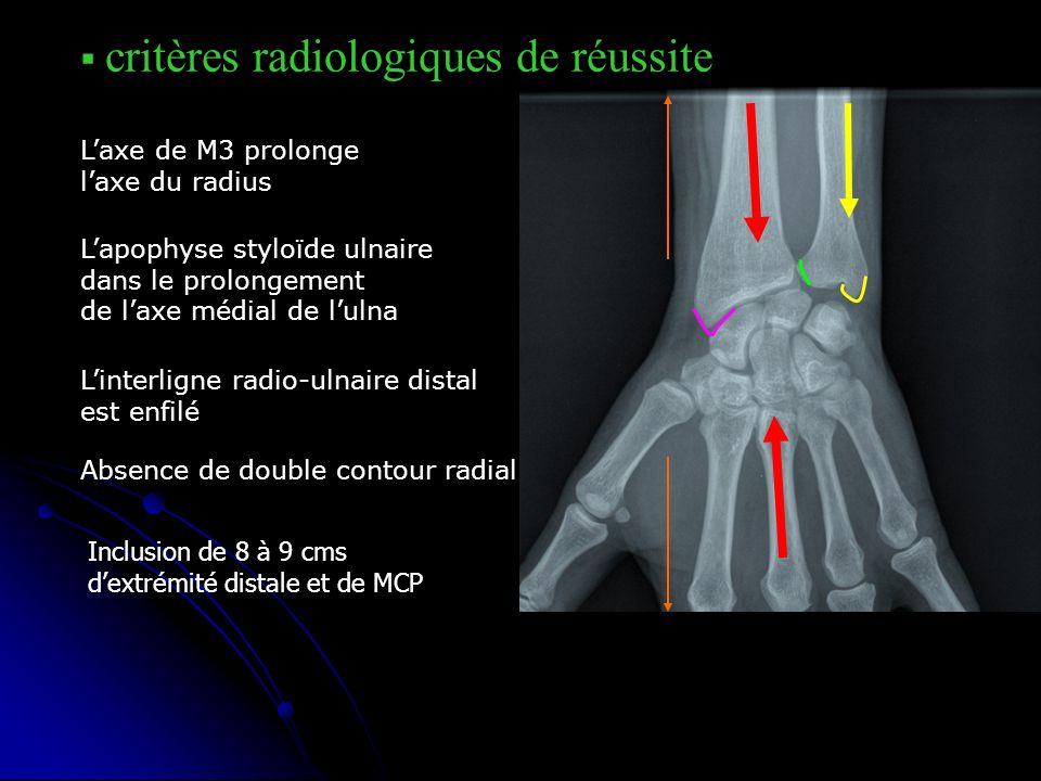 critères radiologiques de réussite