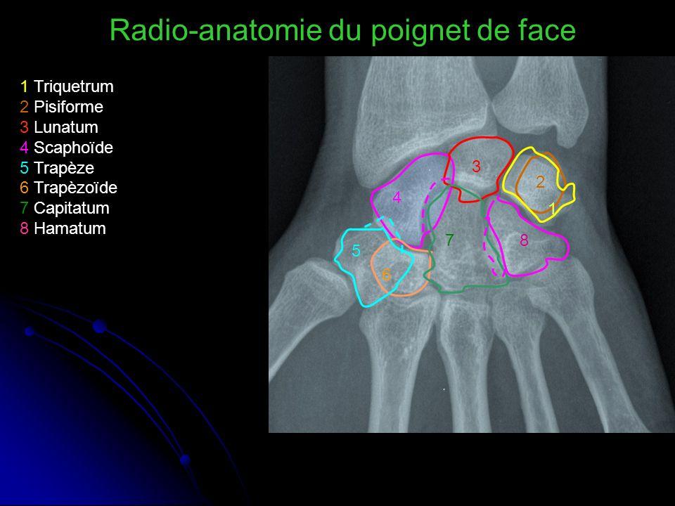 Radio-anatomie du poignet de face