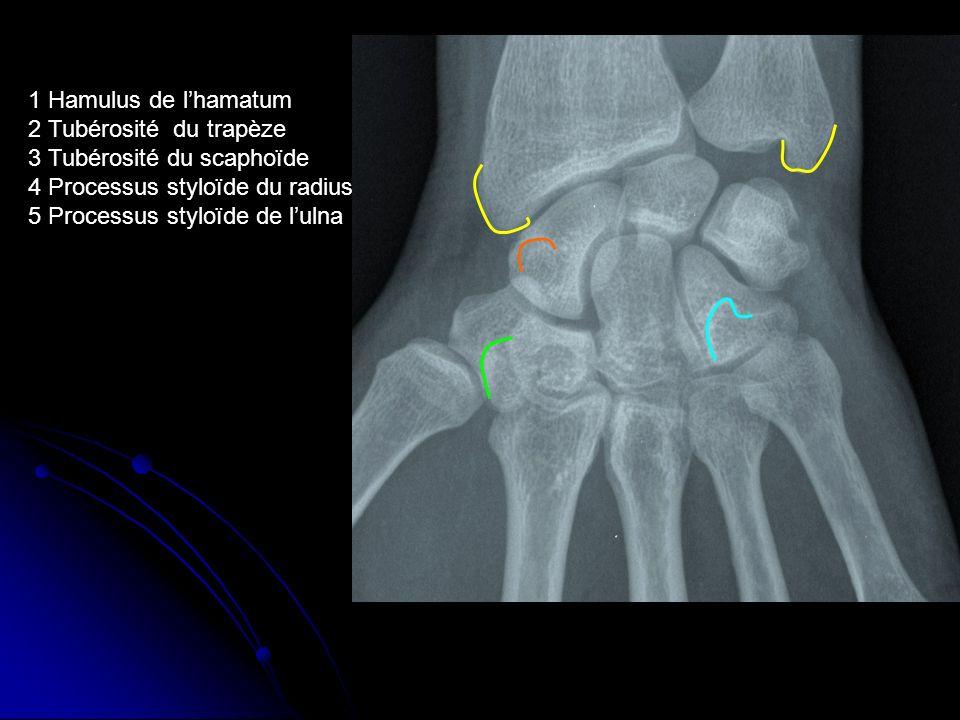 1 Hamulus de l'hamatum 2 Tubérosité du trapèze. 3 Tubérosité du scaphoïde. 4 Processus styloïde du radius.