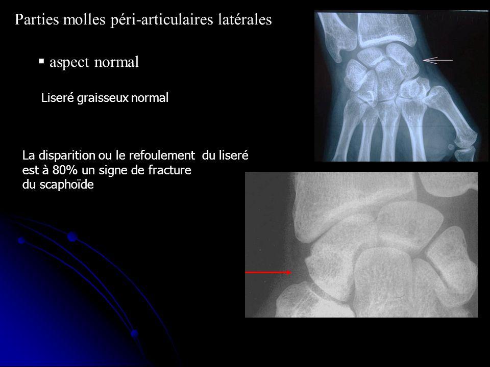 Parties molles péri-articulaires latérales