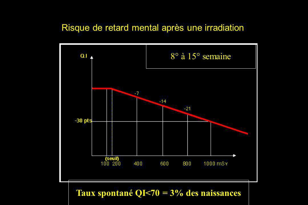 Risque de retard mental après une irradiation