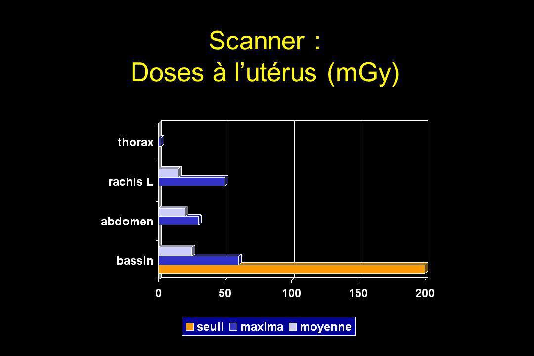 Scanner : Doses à l'utérus (mGy)