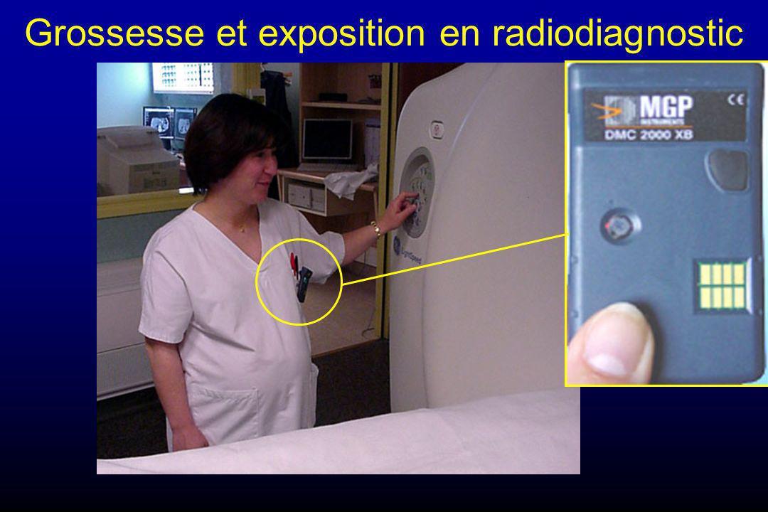Grossesse et exposition en radiodiagnostic