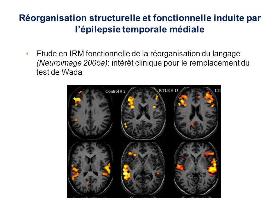 Réorganisation structurelle et fonctionnelle induite par l'épilepsie temporale médiale