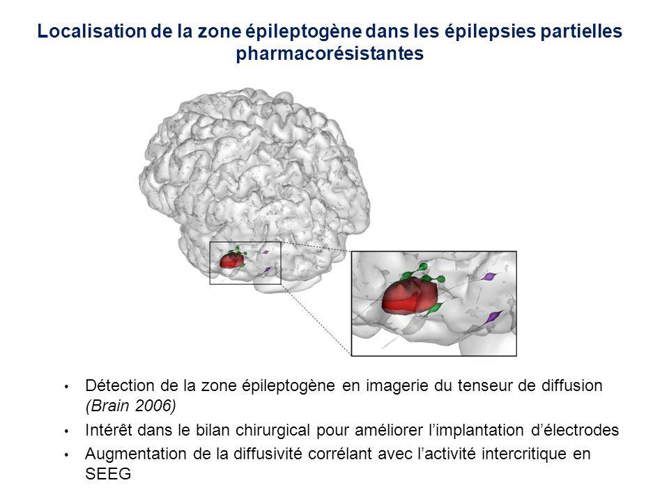 Localisation de la zone épileptogène dans les épilepsies partielles pharmacorésistantes