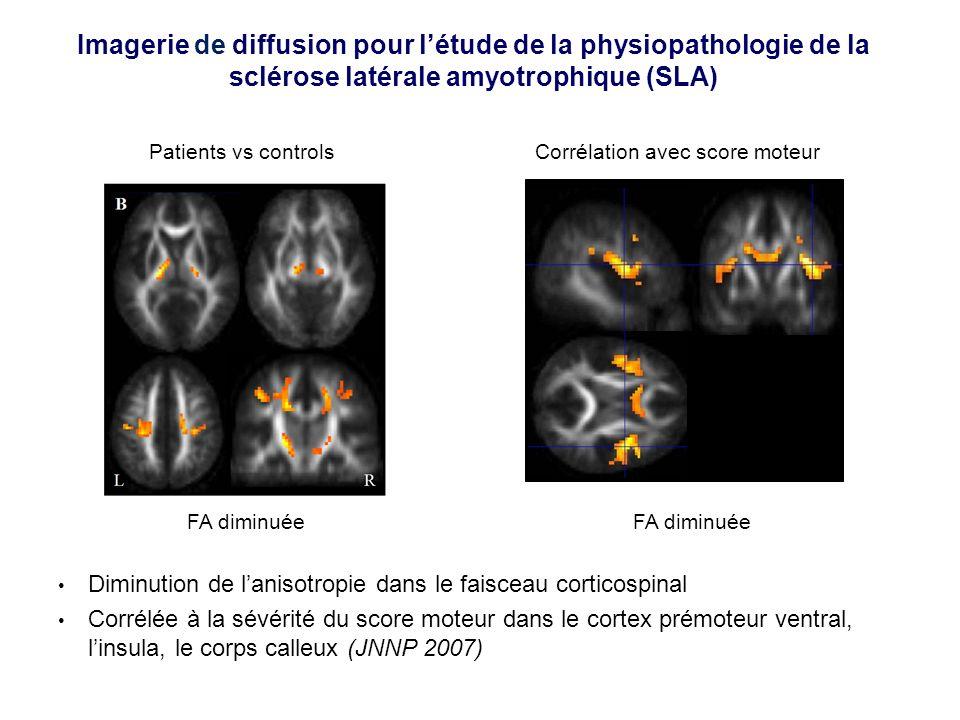 Imagerie de diffusion pour l'étude de la physiopathologie de la sclérose latérale amyotrophique (SLA)