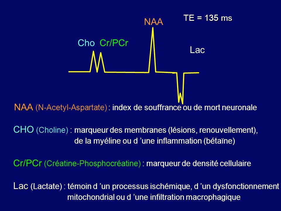 NAA (N-Acetyl-Aspartate) : index de souffrance ou de mort neuronale