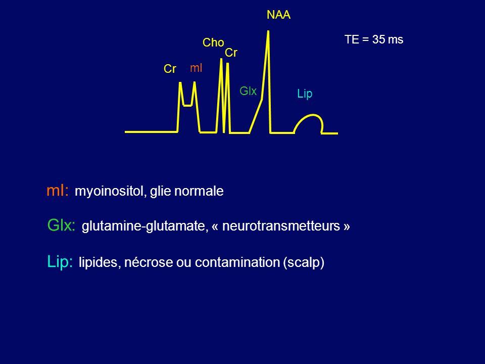 mI: myoinositol, glie normale