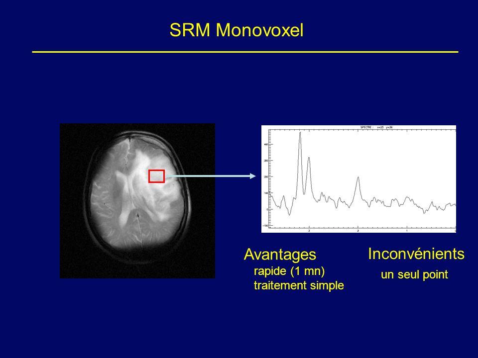 SRM Monovoxel Avantages Inconvénients un seul point rapide (1 mn)