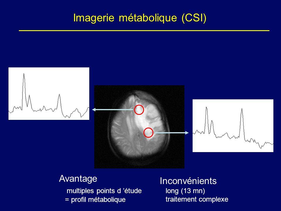 Imagerie métabolique (CSI)
