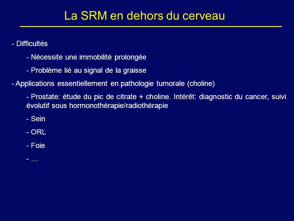 La SRM en dehors du cerveau