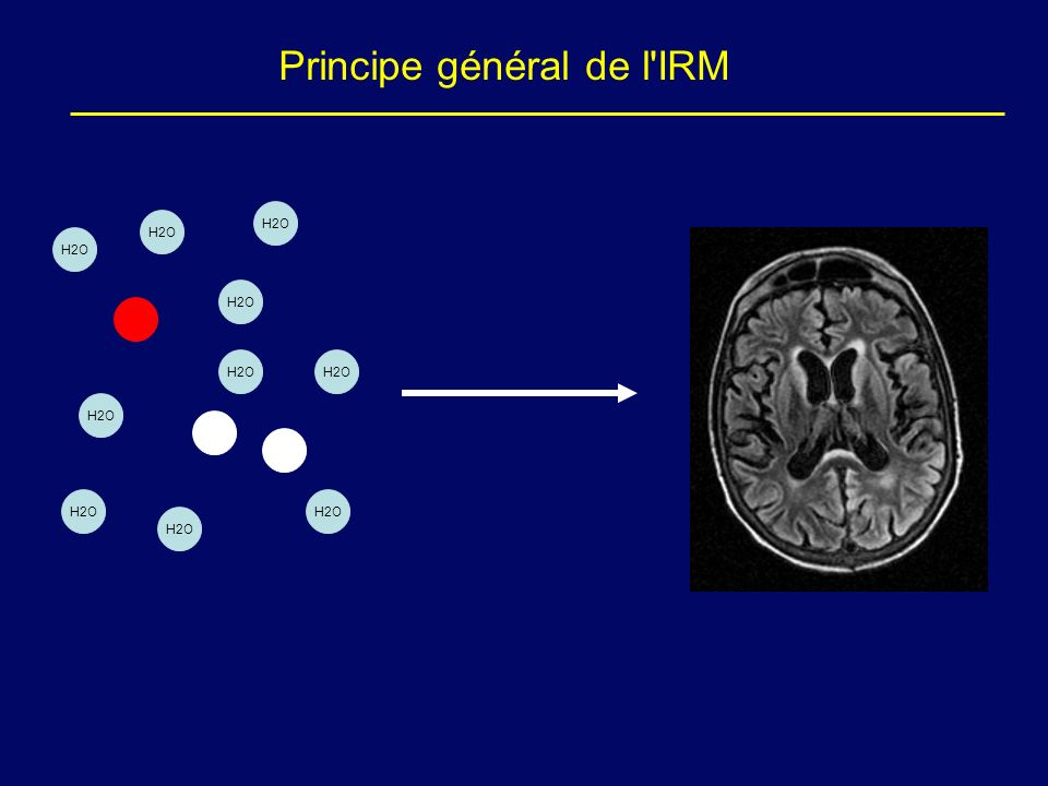 Principe général de l IRM
